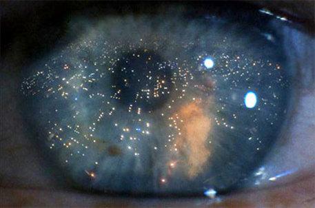 Foto di scena di Blade Runner. E' stato ottenuto il primo occhio in provetta: e' di topo ed e' nato da cellule staminali che si sono organizzate spontaneamente una volta immerse in un cocktail di sostanze che le nutrono e ne favoriscono la crescita. Il risultato, al quale Nature dedica la copertina, anticipa scenari alla Bladerunner, con le fabbriche di occhi per i replicanti immaginate nel celebre film di fantascienza del 1982. Più realisticamente apre la via ai trapianti di retina. ANSA / UFFICIO STAMPA +++NO SALES - EDITORIAL USE ONLY+++